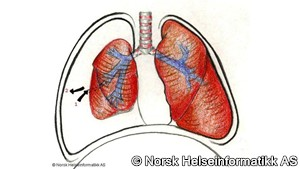 Pneumothorax - quiz